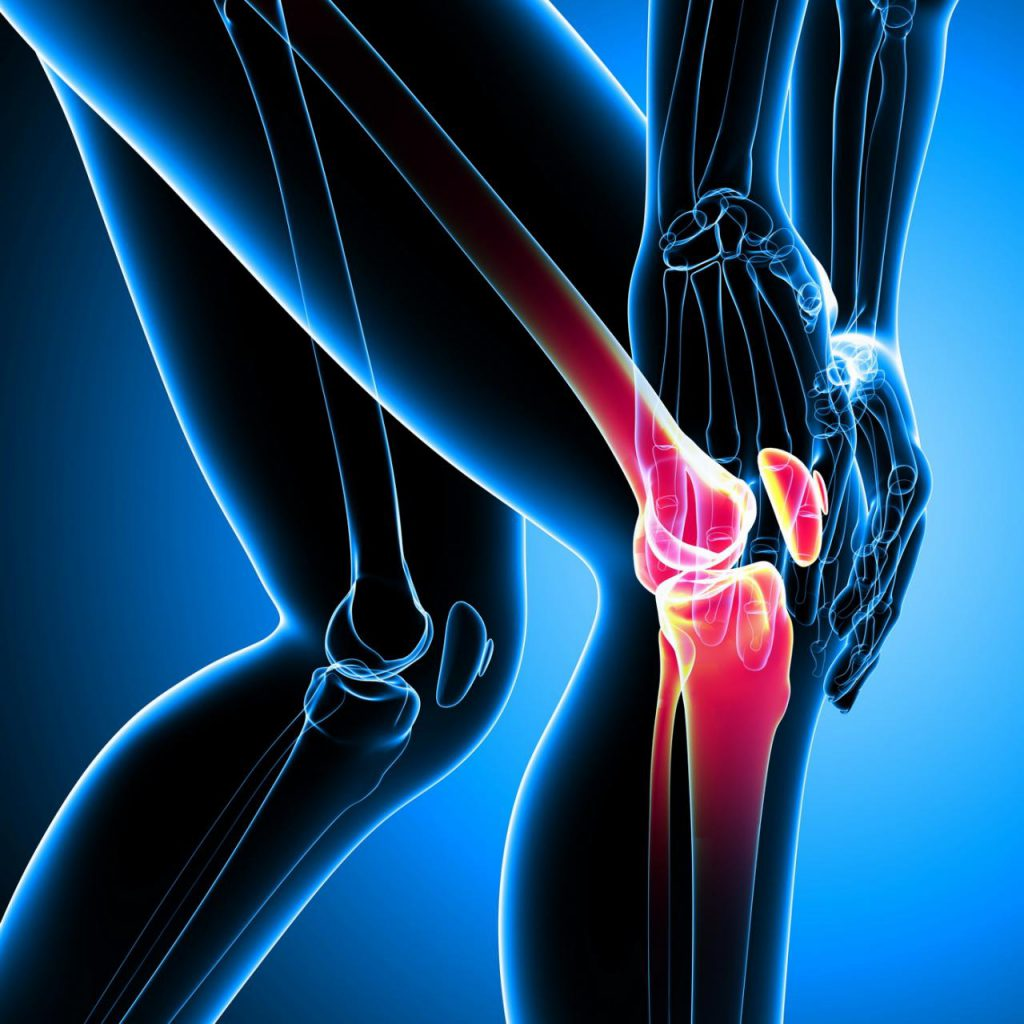 lesión en la rodilla